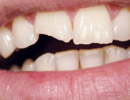 broken chipped or fractured tooth and its restoration