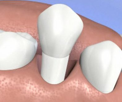 a knocked out or avulsed tooth due to trauma or accident