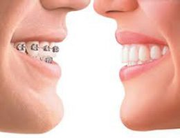 ortho braces