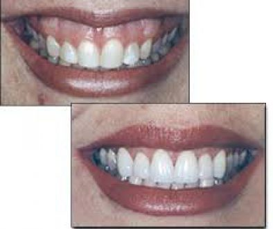 reshaping recontouring gums