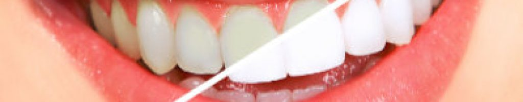 teeth whitening bleaching