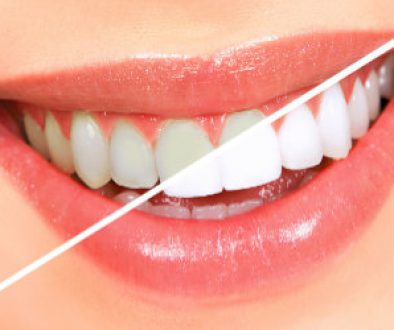 teeth whitening bleaching