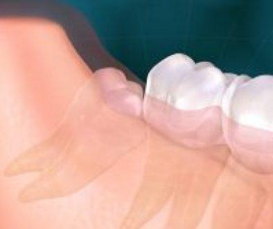 wisdom teeth extraction graphics