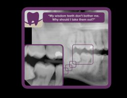 Should you take out your wisdom teeth?