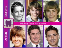 Before and After of Zac Efron's Smile and Teeth
