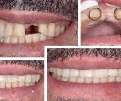 Before and After of an anterior bridge done in less than an hour