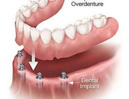 implant overdentures 300